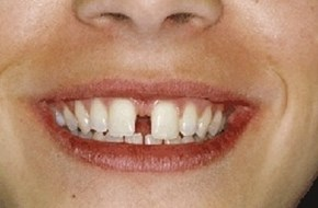 hævet tandkød mellem fortænder